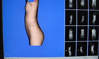scoliosis_software